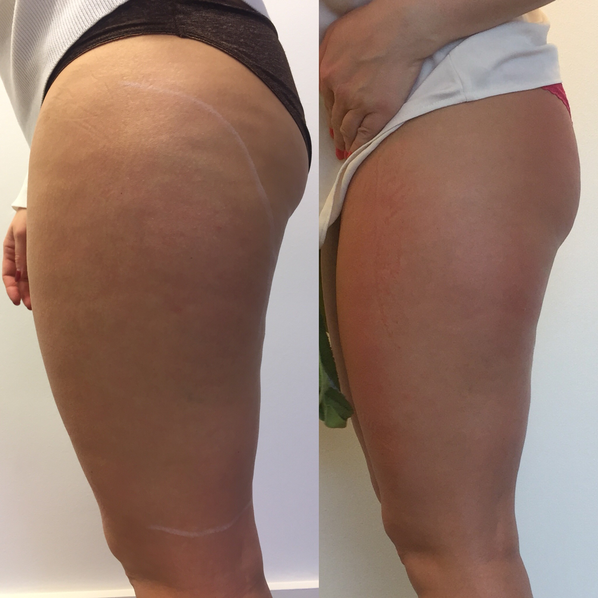 Fat & Cellilite Reduction