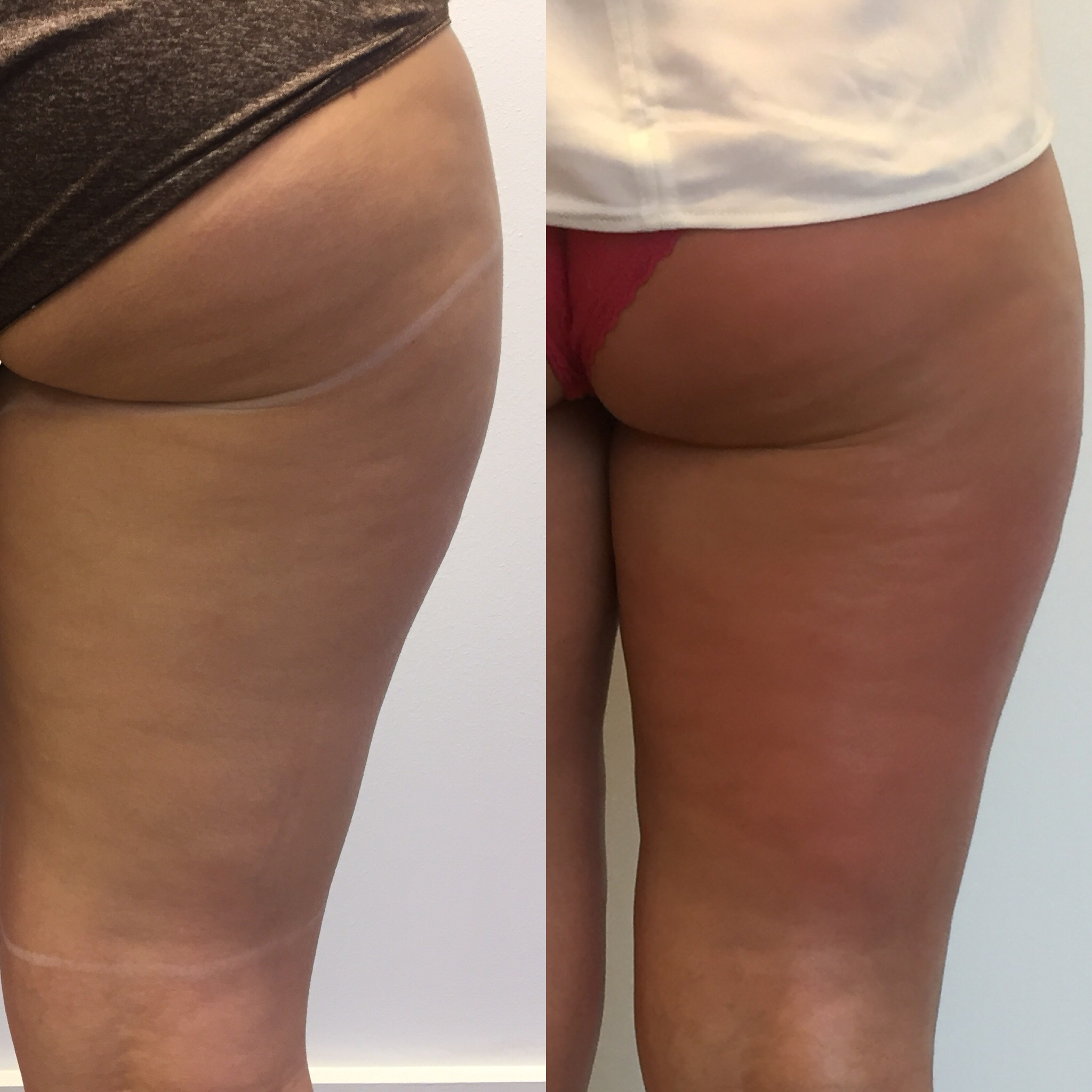 CCellulite Reduction