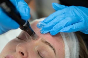 lines and wrinkle treatment